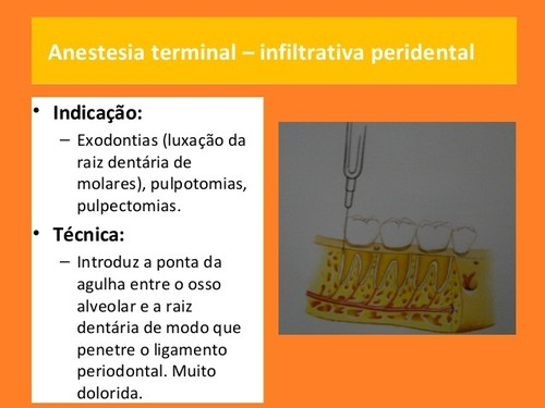 anestesia-local-em-medicina dentaria (7).jpg