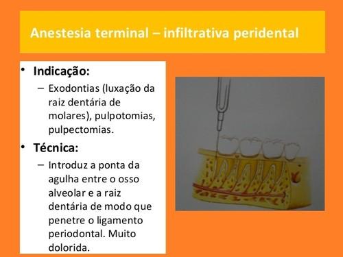 anestesia-local-em-medicina dentaria (7).jpg