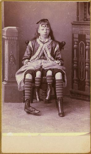 Josephene Myrtle Corbin, the Four-Legged Woman.png
