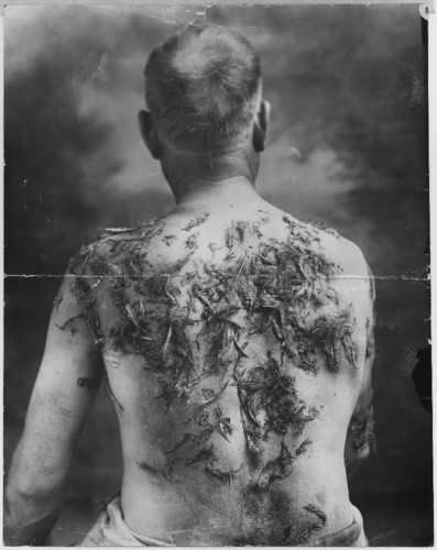 John_Meintz,_punished_during_World_War_I.jpg