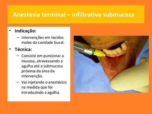 anestesia-local-em-medicina dentaria (3).jpg