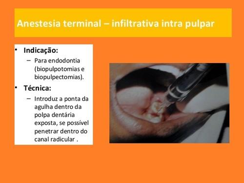 anestesia-local-em-medicina dentaria (8).jpg