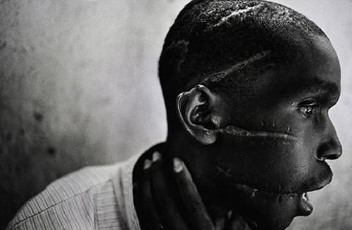 homem-liberdado-sobrevive-campo-concentracao.jpg