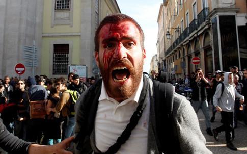 Manifestantes agredidos pela Policia