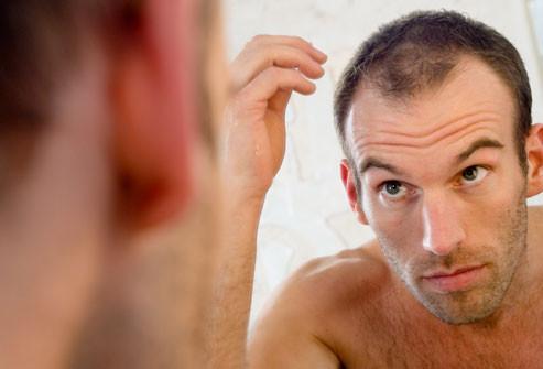 getty_rf_photo_of_balding_man_in_mirror.jpg