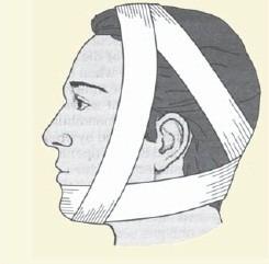 bandagem 2.jpg