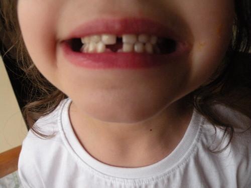 3 Junho 2015 1 dente caiu (3).JPG