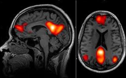 Imagem do cérebro com a rede neuronal estudada pe