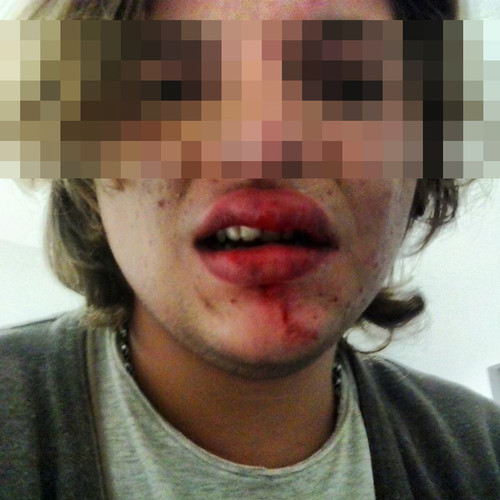 vítima de bullying homofóbico na Madeira.jpg
