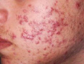 acne_rosto__a9f908ac0a.jpg