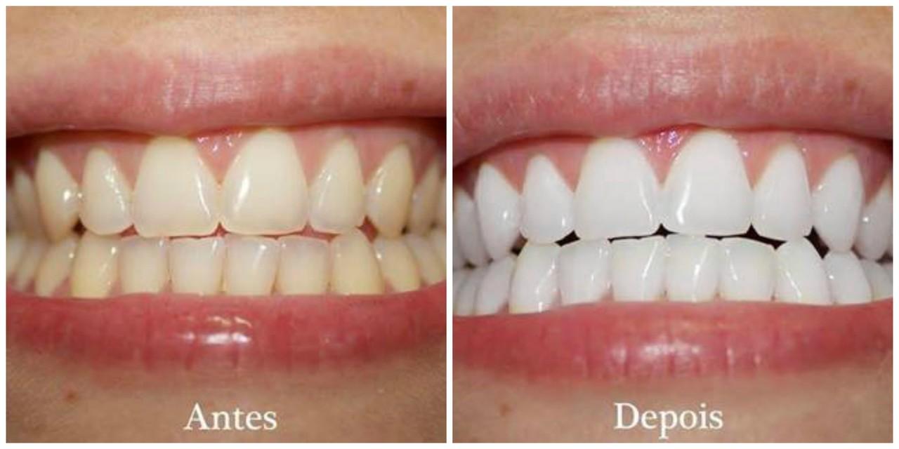Branqueamento Dentario Caseiro Por Menos De 1 Resultados Na 1ª
