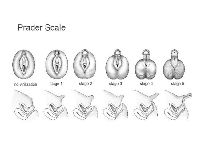 шкала Прадера