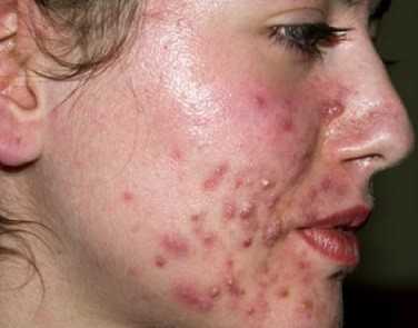 Acne-and-pimples-Treatment.jpg