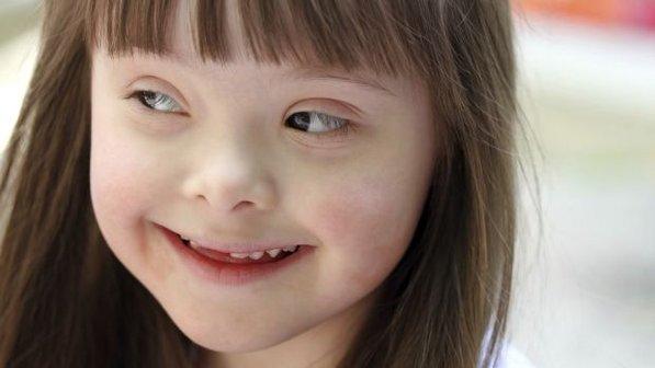 crianca-menina-sindrome-down-20121026-size-598.jpg